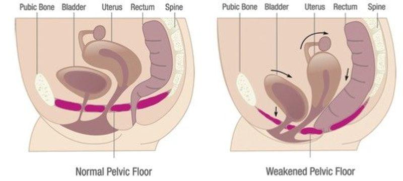 uhajanje urina med tekom